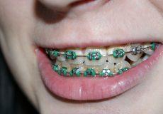 person wearing braces